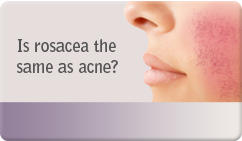 Is rosacea the same as acne