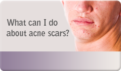what can be done about acne scarrring