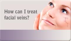 How can I treat facial veins