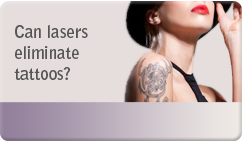 Can lasers eliminate tattoos