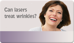 Can lasers treat wrinkles