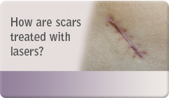 How are scars treated with lasers
