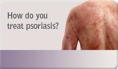 How do you treat psoriasis