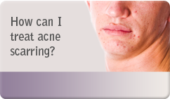 How can i treat acne scarring