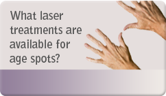 What laser treatments are available for age spots
