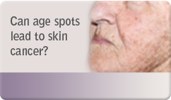 Can age spots lead to skin cancer
