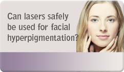 Can lasers safely be used for facial hyperpigmentation
