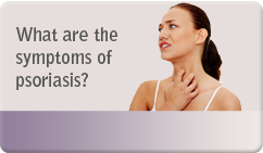 What are the symptoms of psoriasis