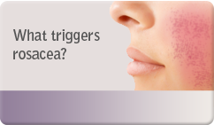 What triggers rosacea