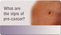 What are the signs of pre cancer
