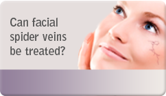 Can facial spider veins be treated