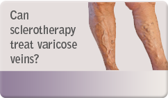 Can sclerotherapy treat varicose veins