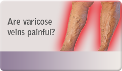 Are varicose veins painful