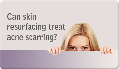 Can skin resurfacing treat acne scarring