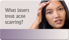 What lasers treat acne scarring