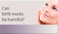 can birthmarks be harmful