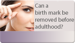 can a birth mark be removed before adulthood