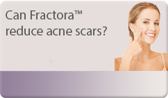 Can Fractora™ reduce acne scars?