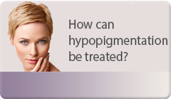 how can hypopigmentation be treated