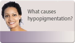 what causes hypopigmentation