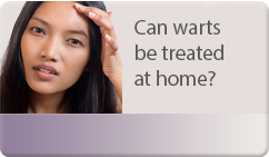 can warts be treated at home
