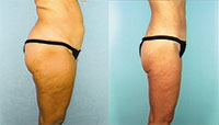liposuction in atlanta ga
