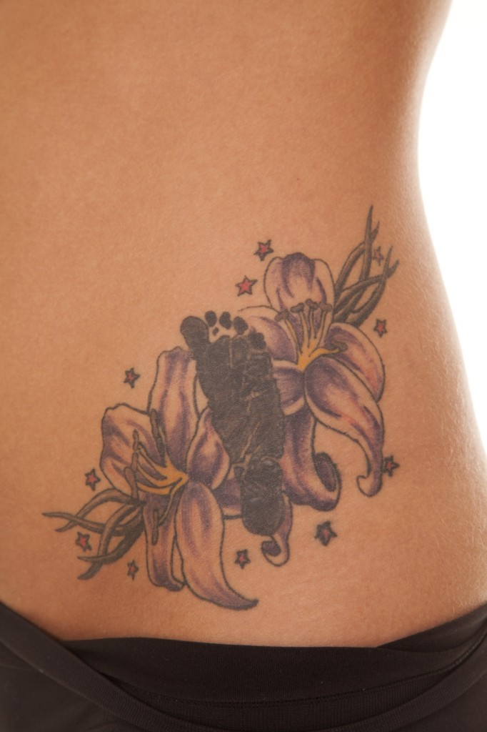 Tattoo Removal Atlanta - Tattoo Collections