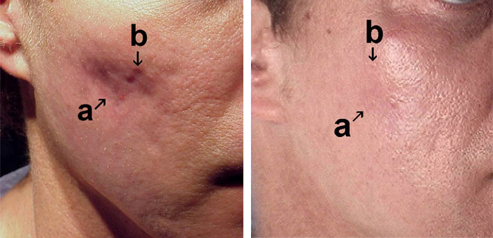 acne-scar-treatment-atlanta georgia (1)
