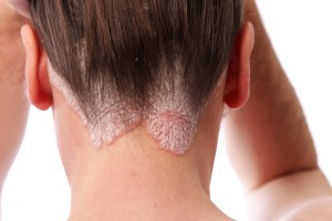 Myths and Facts about Psoriasis Discussed