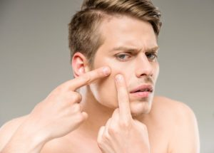 Why Adults Get Acne, Too