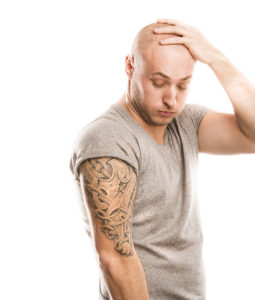 what-types-of-tattoos-are-most-difficult-to-remove